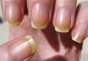 Đoán sức khỏe qua màu sắc móng tay