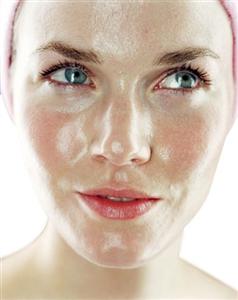 Bí quyết điều trị da nhờn nhiều mụn